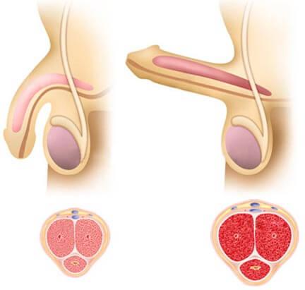 Mechanizmus erekcie - ako vzniká erekcia
