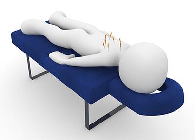 Akupunktúra ako liečba erektilnej dysfunkcie